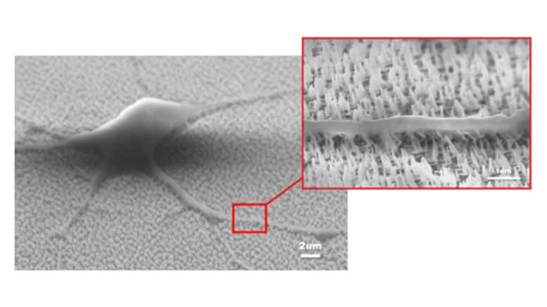 Medical Device for Safe Growth of Neural Stem Cells Using Nanotechnology